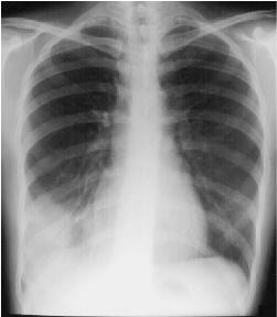 Bronchiectasis More Common in Severe COPD Patients  Study Reveals SlideShare